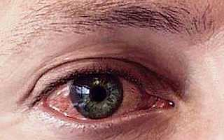 Отличия аллергии немедленного и замедленного типа