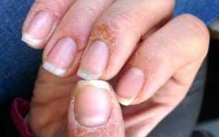 Аллергия на гель-лаки.