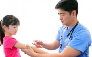 Аллергия на вакцину от коронавируса: чем опасна реакция