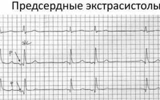 Жизнь после радиочастотной катетерной аблации (РЧА)