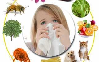 11 самых распространенных аллергий