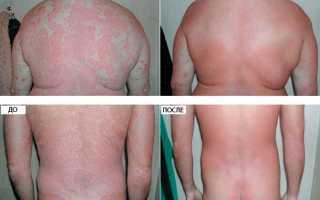 Как и зачем назначают цинковую мазь при лечении псориаза