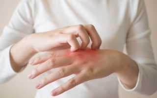 Симптомы и лечение псориаза на руках, ногах, голове и ногтях