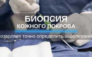 Диагностика псориаза: виды анализов и методы диагностирования