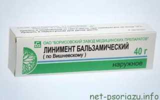 Лечение псориаза мазями: отзывы пациентов
