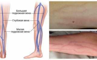 Флебит  — симптомы и лечение