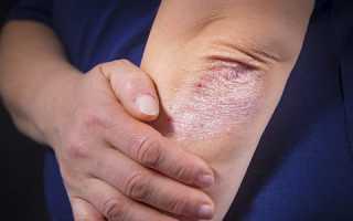 Псориатическая болезнь