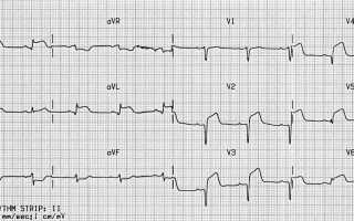 Изменения на ЭКГ при ишемической болезни сердца (вводный обзор)
