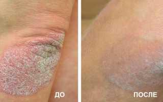 Нафталановая мазь применение при псориазе