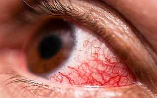 Что делать, если видны сосуды в глазах?