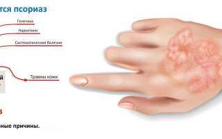 Эффективные наружные средства при псориазе