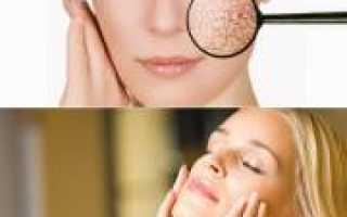 Уход за кожей при псориазе. Рекомендации