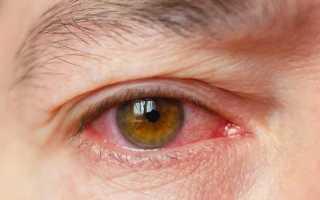 Лечение зуда в глазах