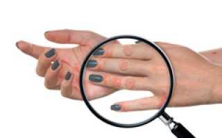 Псориаз — болезнь со сложным характером: можно ли ее вылечить?