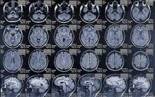 Симптомы и лечение ишемии головного мозга у пожилых