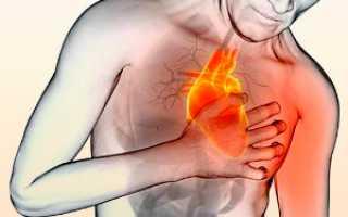 Предсердная тахикардия: причины, особенности недуга и лечение