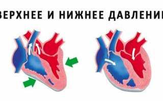 Высокое артериальное давление: причины и лечение