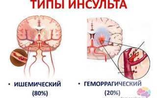 Прогноз деменции после инсульта (слабоумие после инсульта)