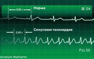 Лекарства от тахикардии при пониженном давлении: медикаменты и народные средства