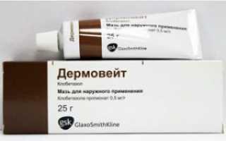 Использование мази дермовейт при псориазе