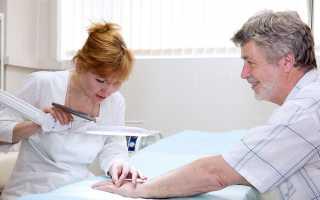 Лечение псориаза препаратом Радевит