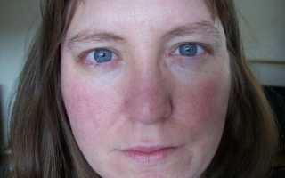 Постменопауза  — симптомы и лечение