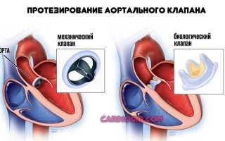 Стеноз аорты: причины, симптоматика и методы лечения