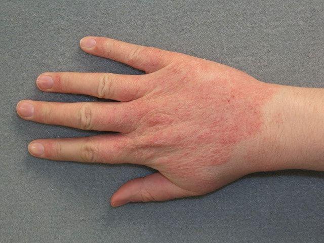allergicheskaya-reakciya-kod-po-mkb-10-2.jpg