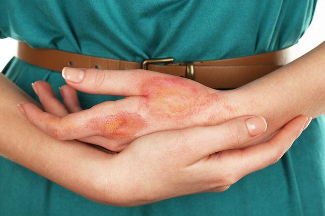 allergicheskaya-reakciya-kod-po-mkb-10-3.jpg