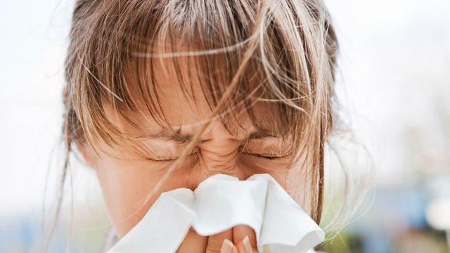 allergicheskaya-reakciya-kod-po-mkb-10-4.jpg