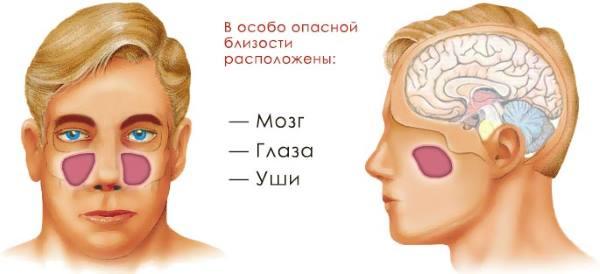 oslozhneniya-gajmorita-simptomy.jpg