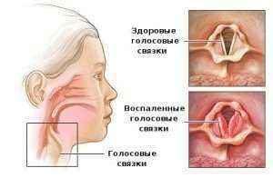 diagnostika-hronicheskogo-laringita-300x196.jpg