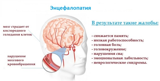 Гипертоническая энцефалопатия: особенности, лечение ...