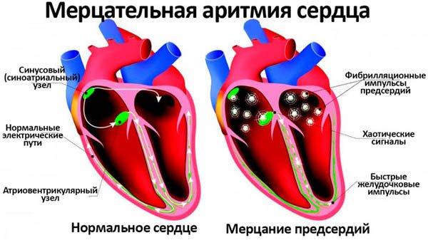 Лечение тахикардии и аритмии — Cardio