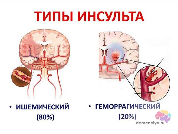 S071-04-Tipy-insulta-predshestvuyushhie-dementsii.jpg