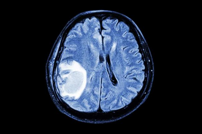 Otyok-golovnogo-mozga-1024x683.jpg