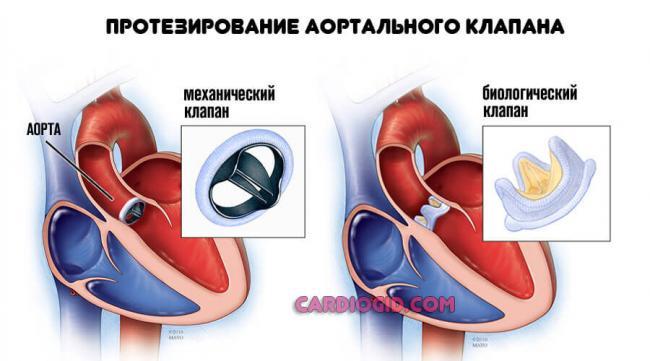 protezirovanie-klapana-aorty.jpg