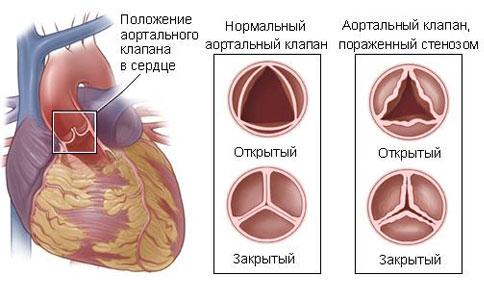 stenoz-aortalnogo-klapana.jpg