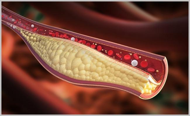 artery-fat-plaque-.jpg