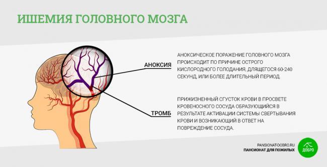 ishemiya_golovnogo_mozga.png